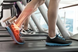 treadmill foot pain causes